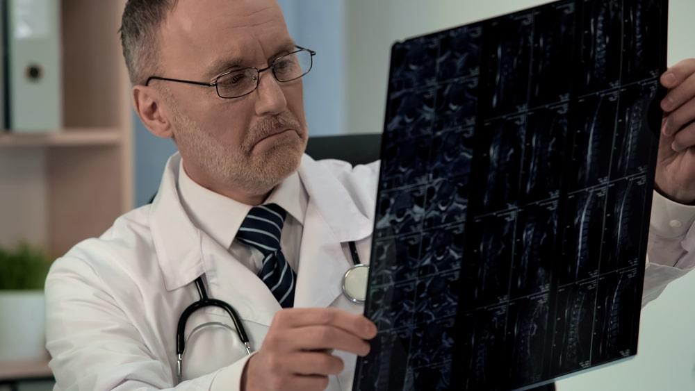 MRI בעמוד השדרה