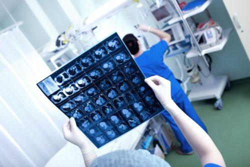כאבי גב - לאתר את שורש הבעיה על ידי בדיקת MRI /CT