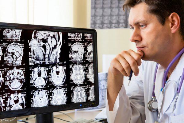 MRI ראש ומח